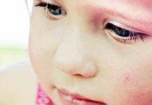 Pnevmokokne okužbe